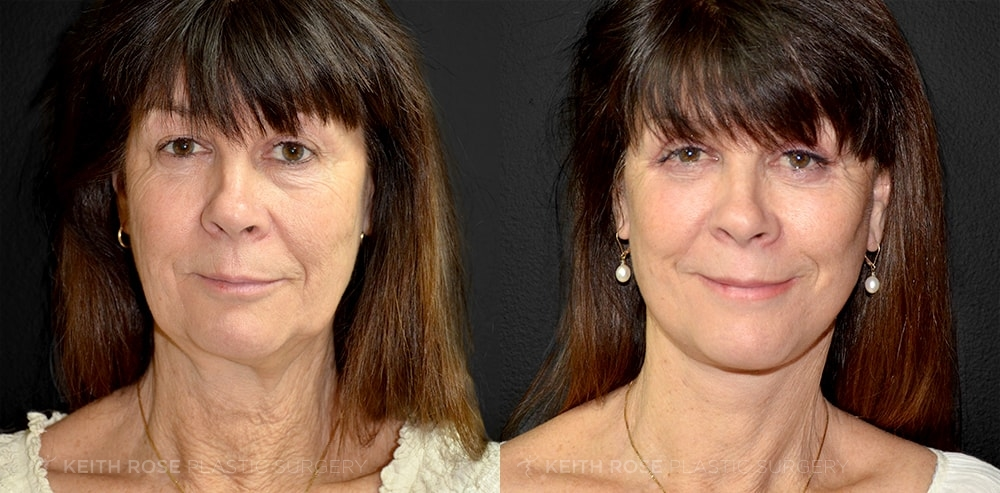 Facelift Before and After Patient 1