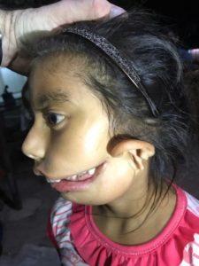 Tatianna Before Surgery