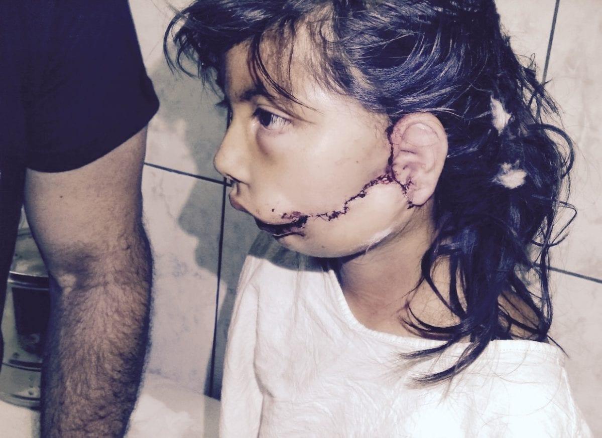 Child Patient After Face Surgery 1