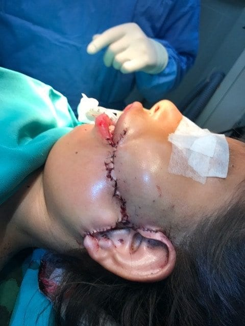 Child Patient After Facial Surgery